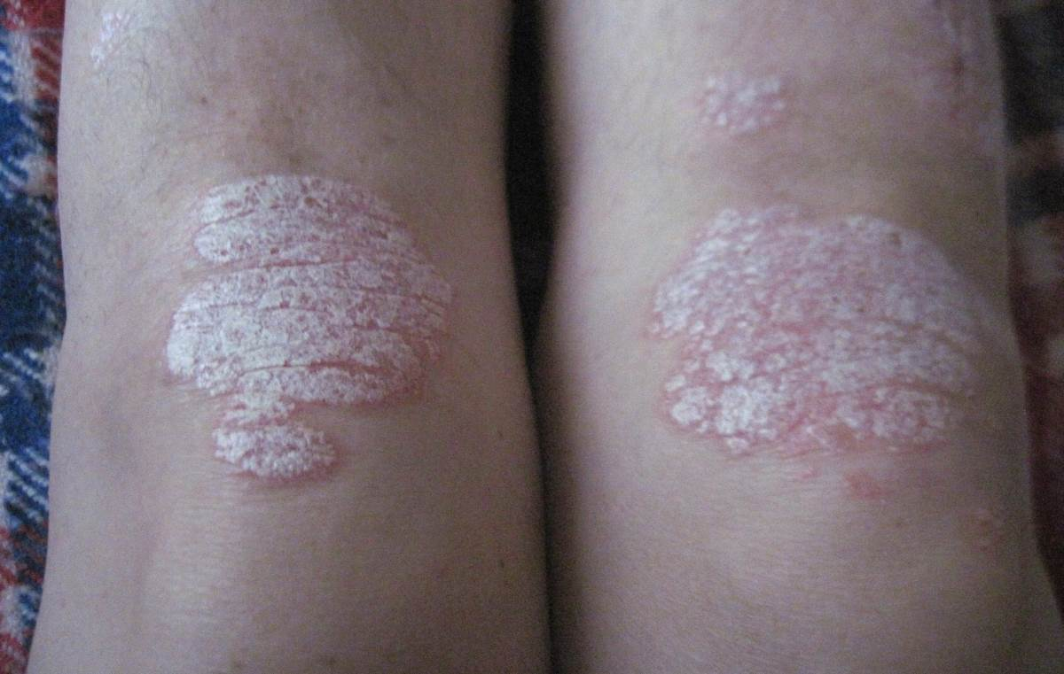 Plaque psoriasis on knees pictures