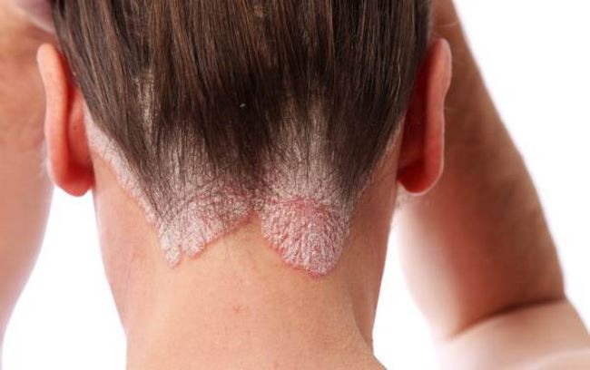 Plaque psoriasis symptoms pictures 1
