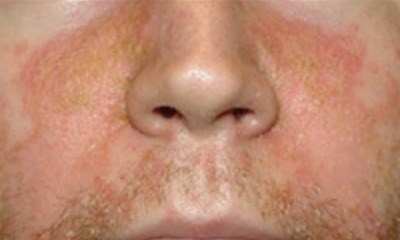 Psoriasis on face pictures 4