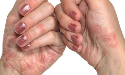 Psoriasis on hands pictures 3