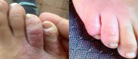 Psoriasis on toes pictures 5