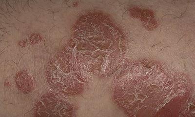Psoriasis skin rash pictures 5