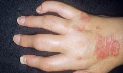 Psoriatic arthritis pictures 2