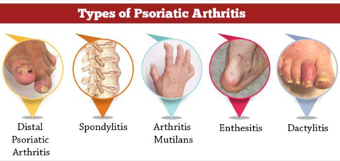 Psoriatic arthritis symptoms pictures 1