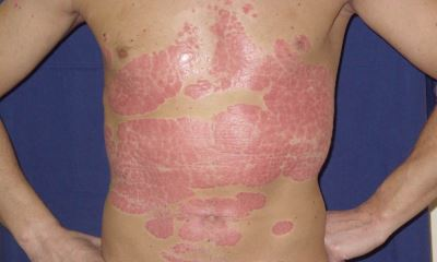 Severe plaque psoriasis photos 4