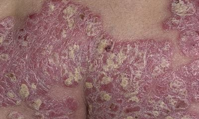 Severe psoriasis pictures 6