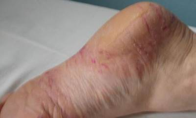 Signs of psoriasis on feet images 3