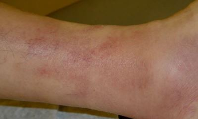 Superficial thrombophlebitis pictures 7