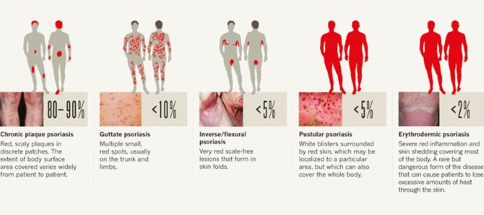 Types of psoriasis pictures 1