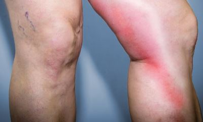 What is phlebitis pictures 4