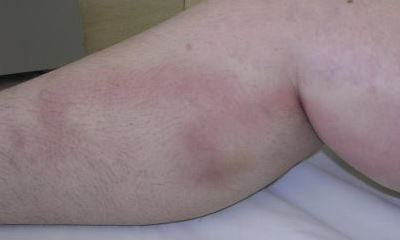 Blood clot in calf pictures 6