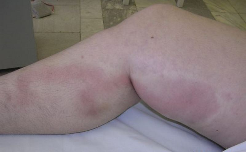 Blood clot in calf symptoms pictures
