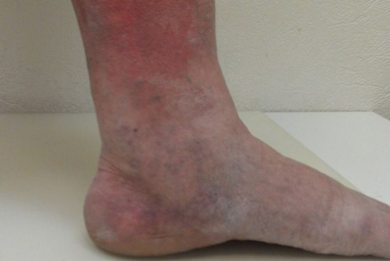 Blood clot in foot symptoms pictures
