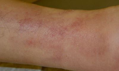 Blood clot in lower leg pictures 5