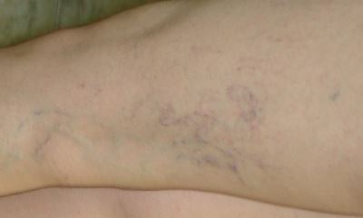 Blood clot in thigh pictures 4