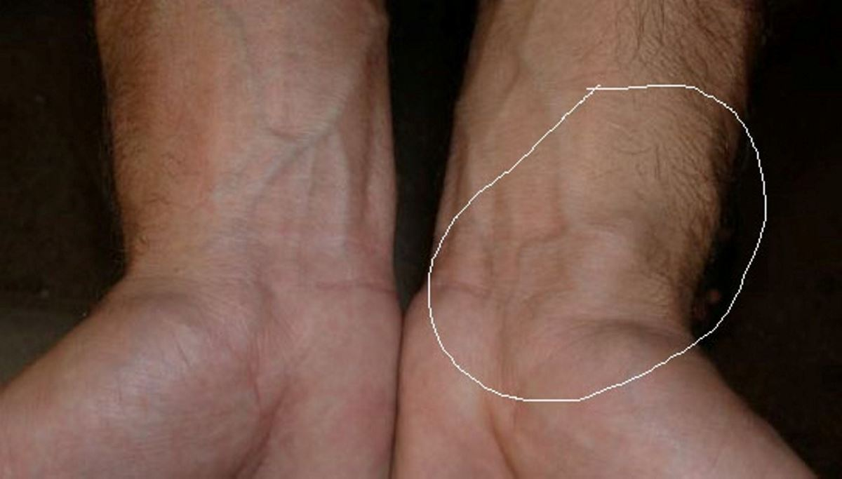 Blood clot in wrist symptoms pictures