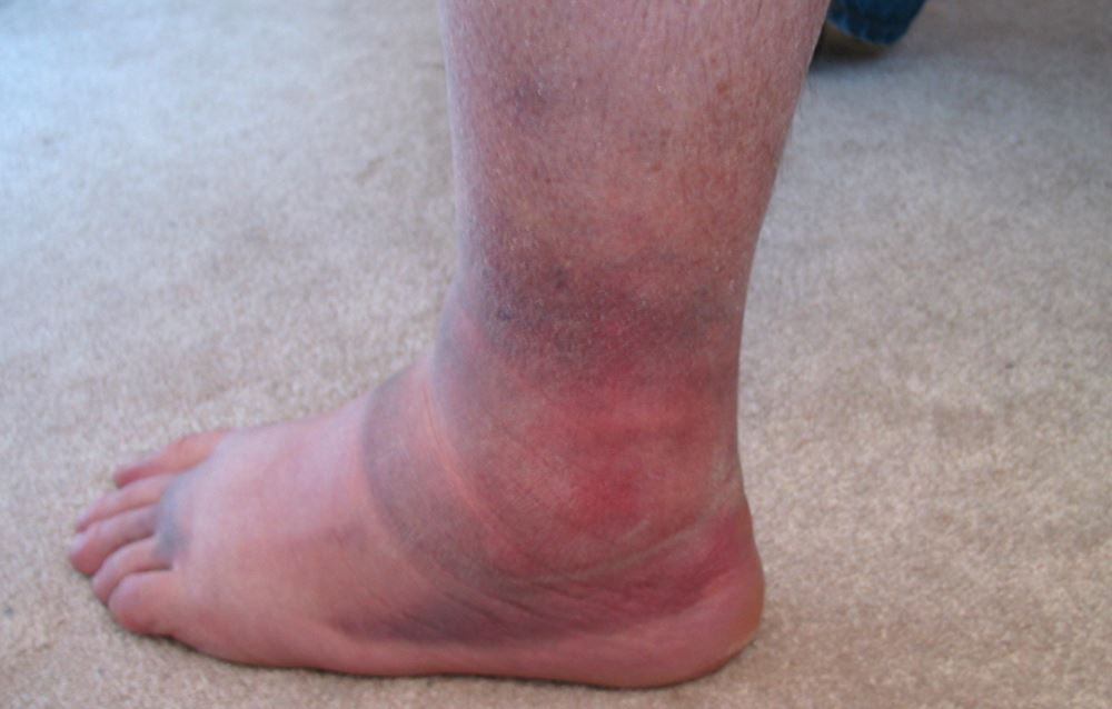 Blood clots in feet pictures