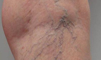 Bulging veins in legs pictures 2