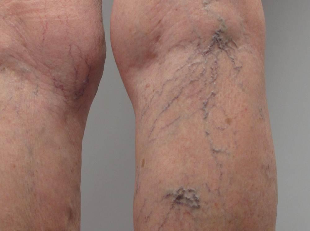 Bulging veins in legs pictures