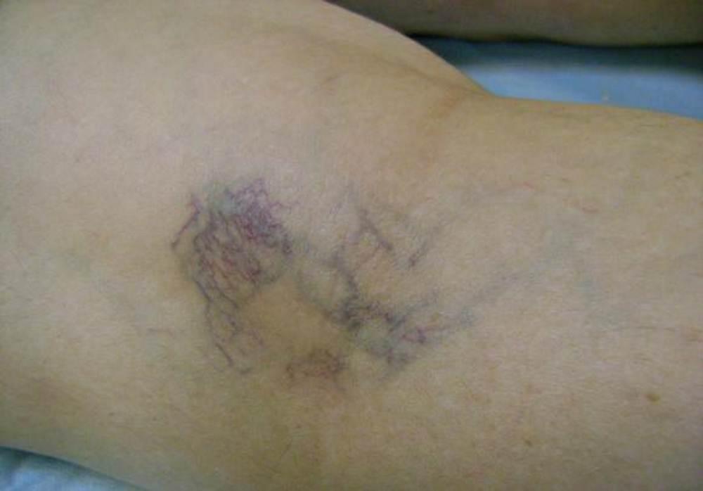 Burst vein in leg pictures
