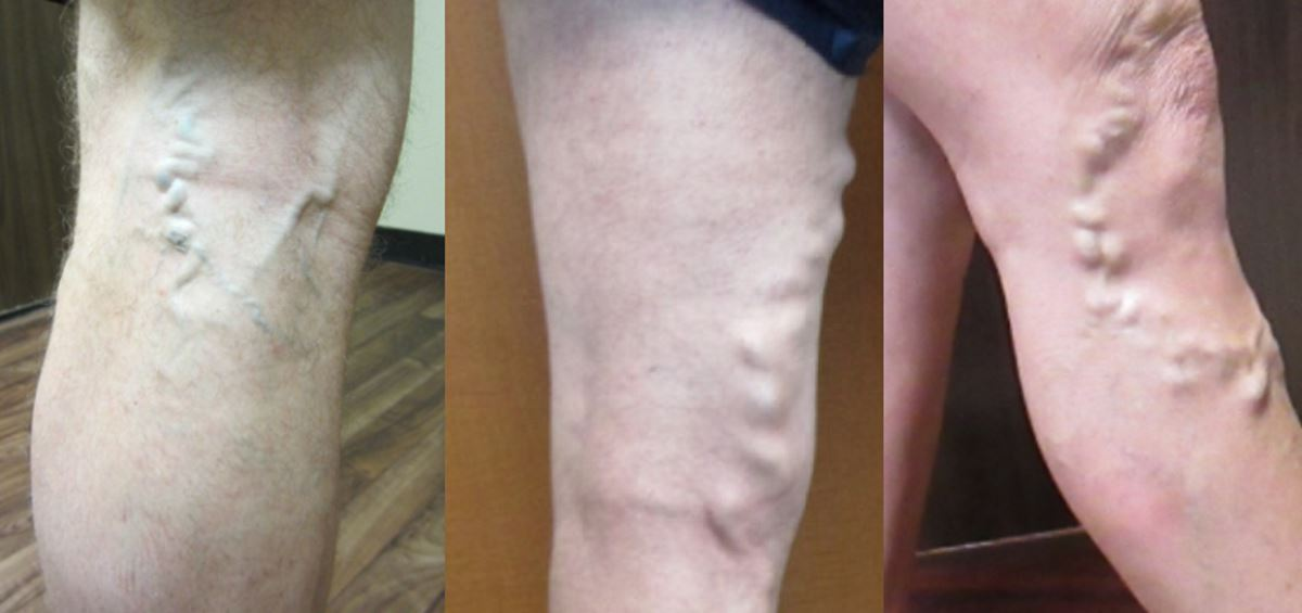 Pictures of bad varicose veins