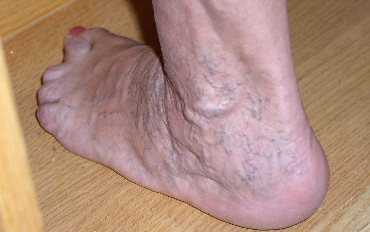 Pictures of varicose veins in ankles