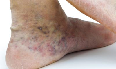 Pictures of varicose veins in feet 3