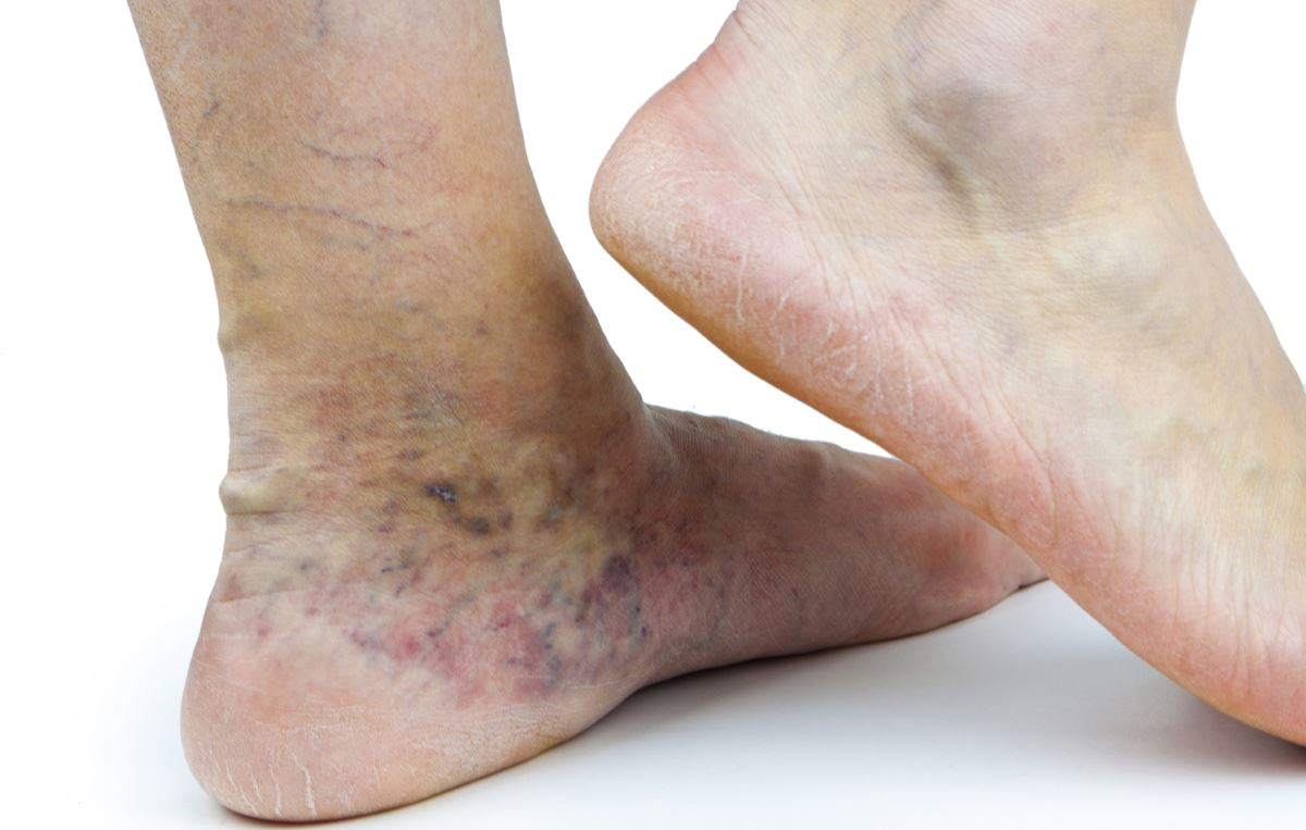 Pictures of varicose veins in feet