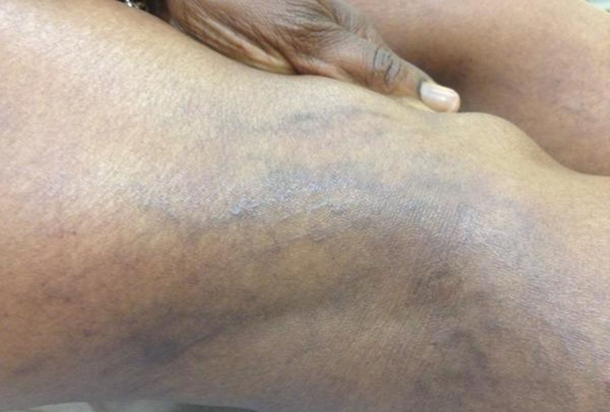 Sclerotherapy bruising photos