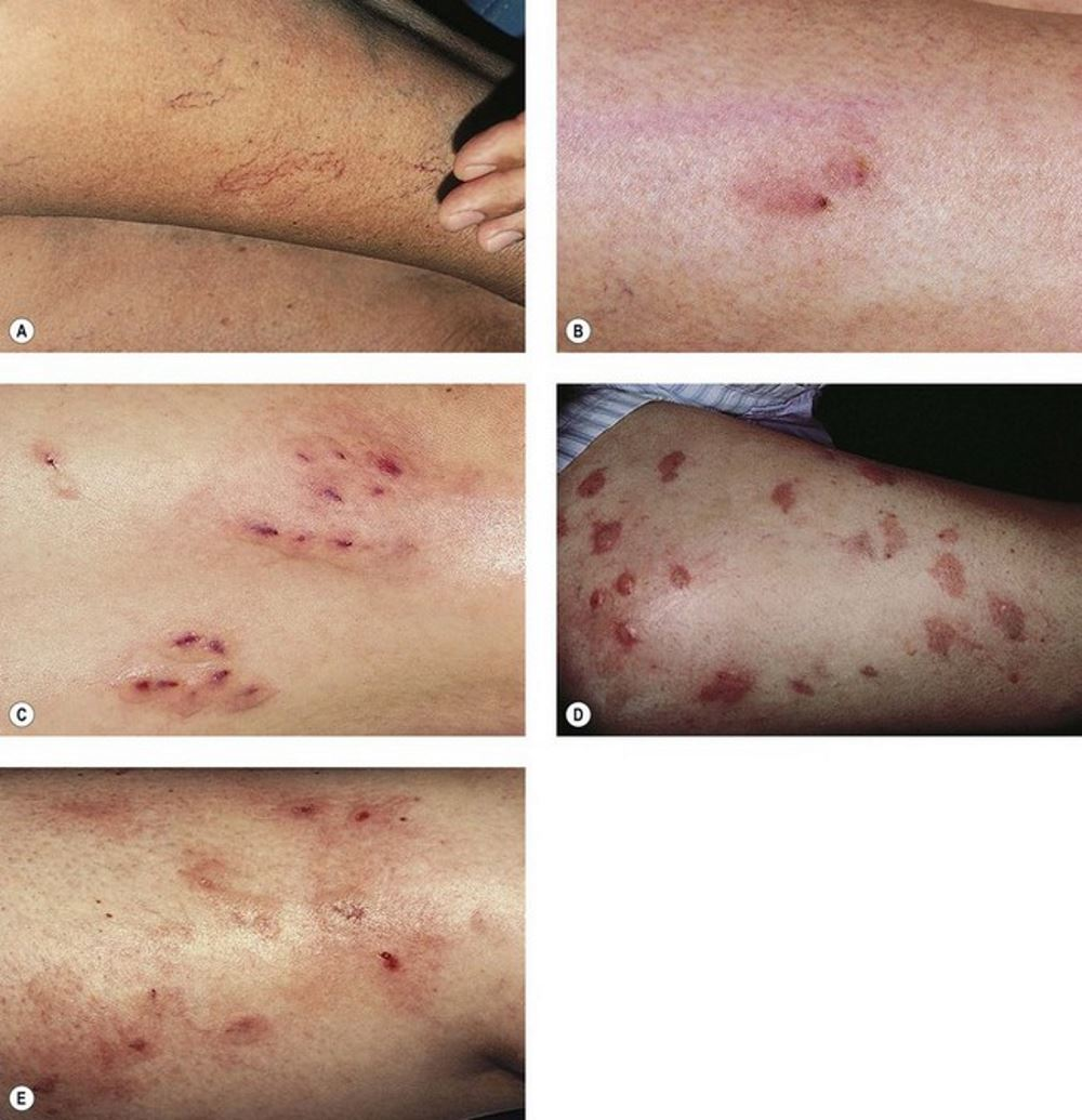 Sclerotherapy complications pictures