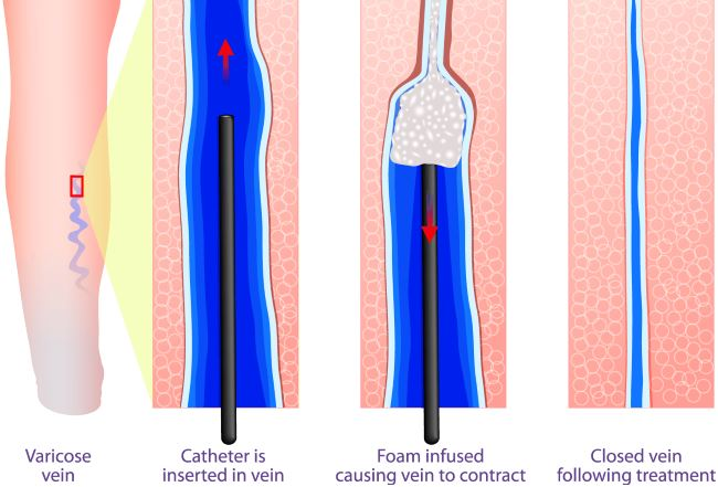 Sclerotherapy pictures 5