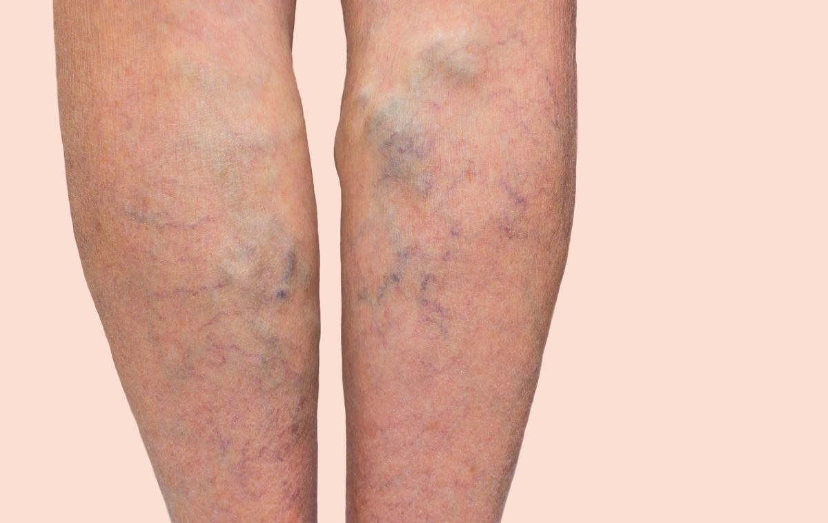 Signs of varicose veins images