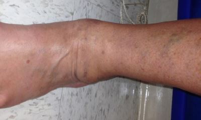 Symptoms of blood clot in ankle pictures 2