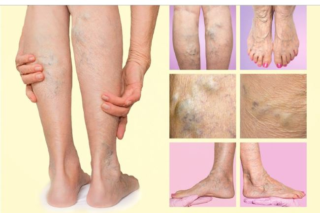 Symptoms of varicose veins pictures 1