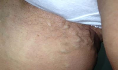 Symptoms of vulvar varicose veins pictures 4