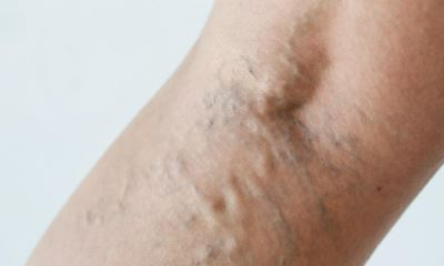 Varicose veins behind knee pictures 2