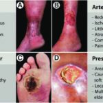Arterial leg ulcers pictures