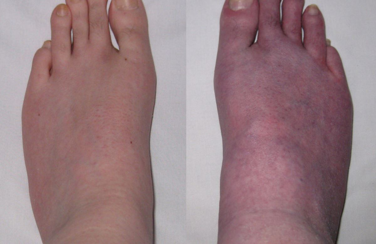 Blood pooling in feet pictures