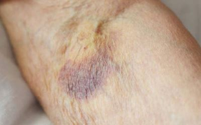 Broken blood vessel in arm pictures 5