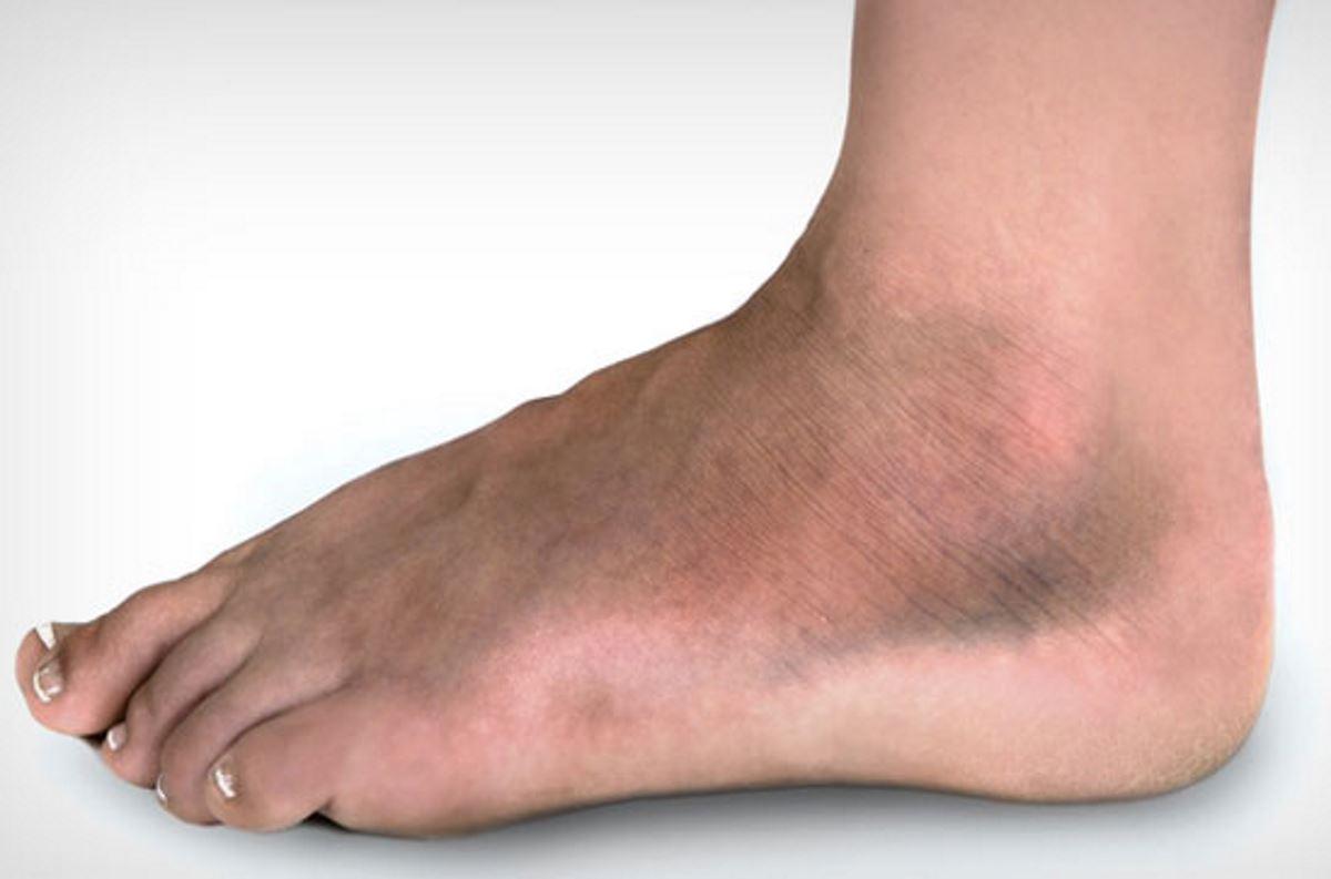 Broken blood vessel in foot pictures