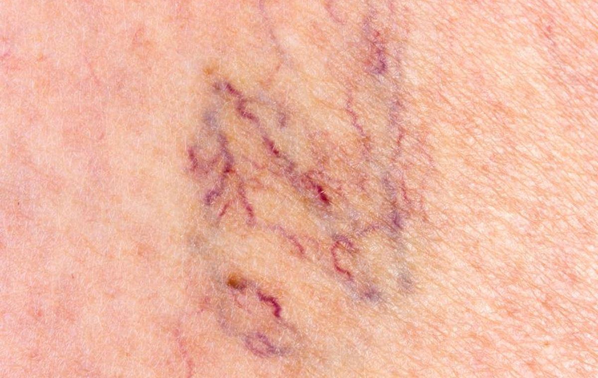 Broken capillaries on legs pictures