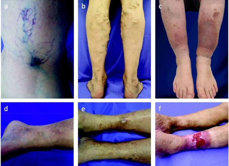 Chronic venous disease pictures