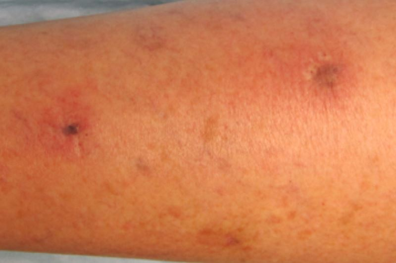 How do leg ulcers start pictures