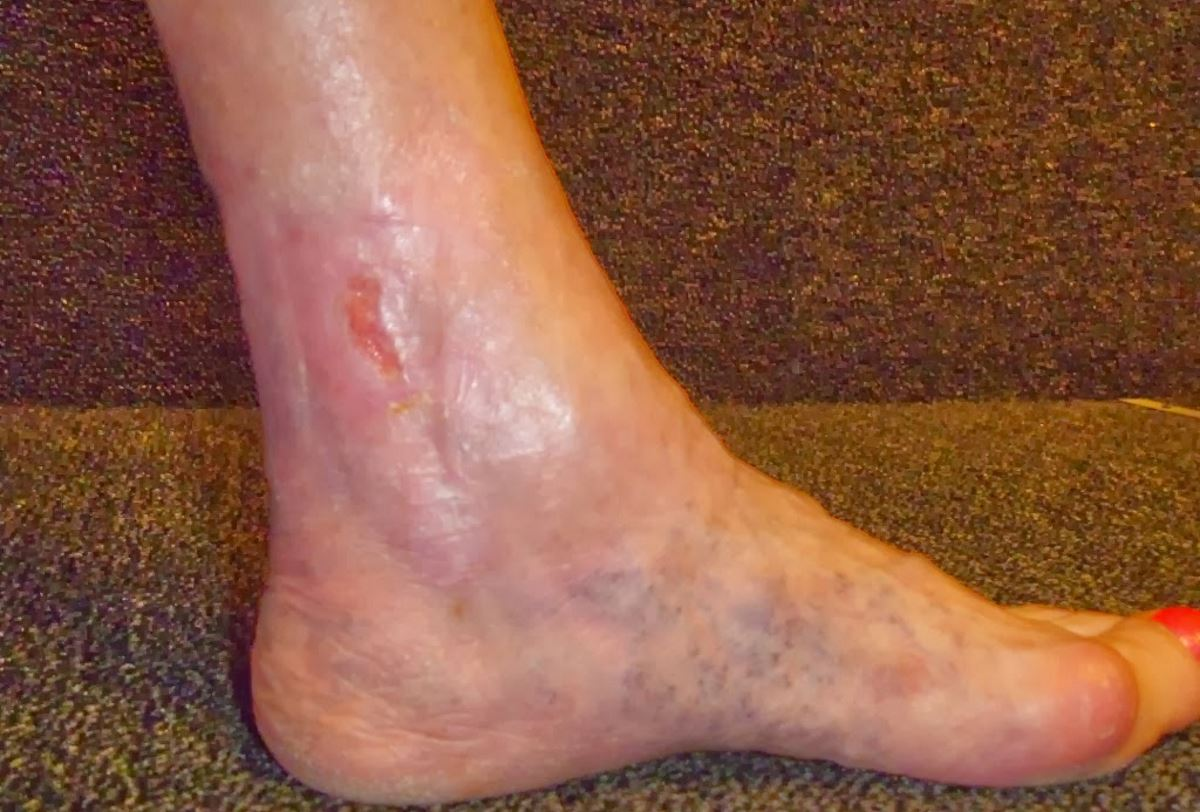Images of small leg ulcers