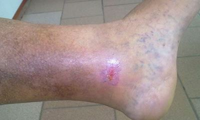 Leg sores pictures 3