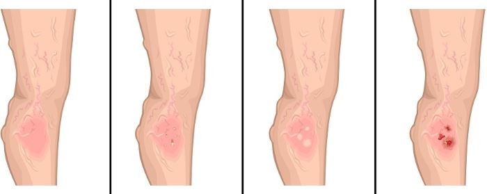 Leg ulcers pictures 1
