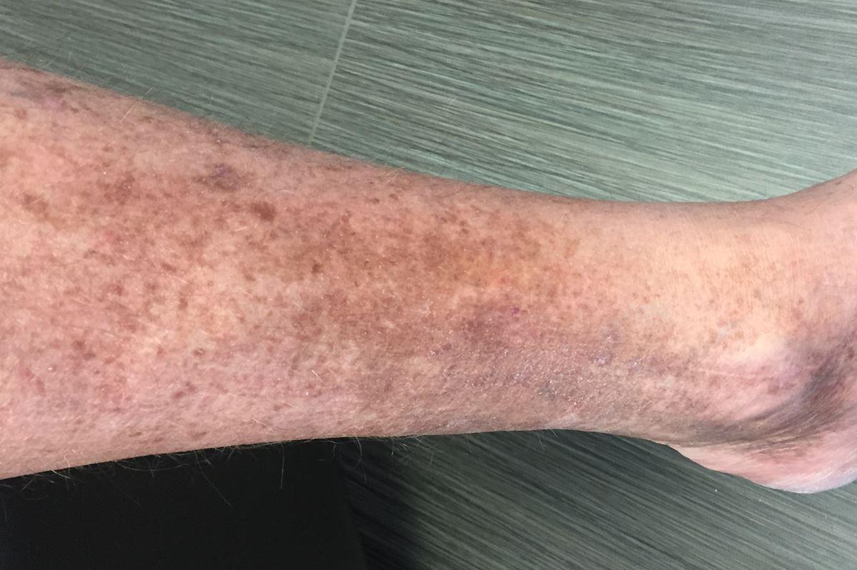 Symptoms of venous stasis dermatitis pictures