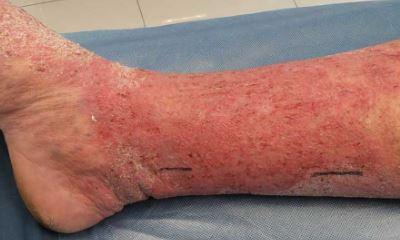 Varicose eczema pictures 4