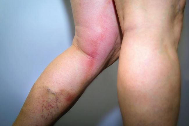 Vascular disease legs pictures 1