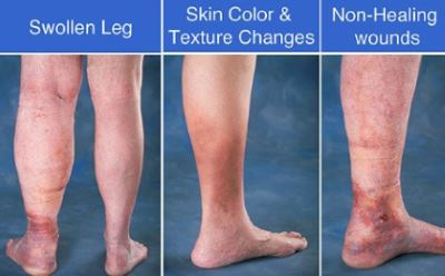Venous insufficiency pictures 3